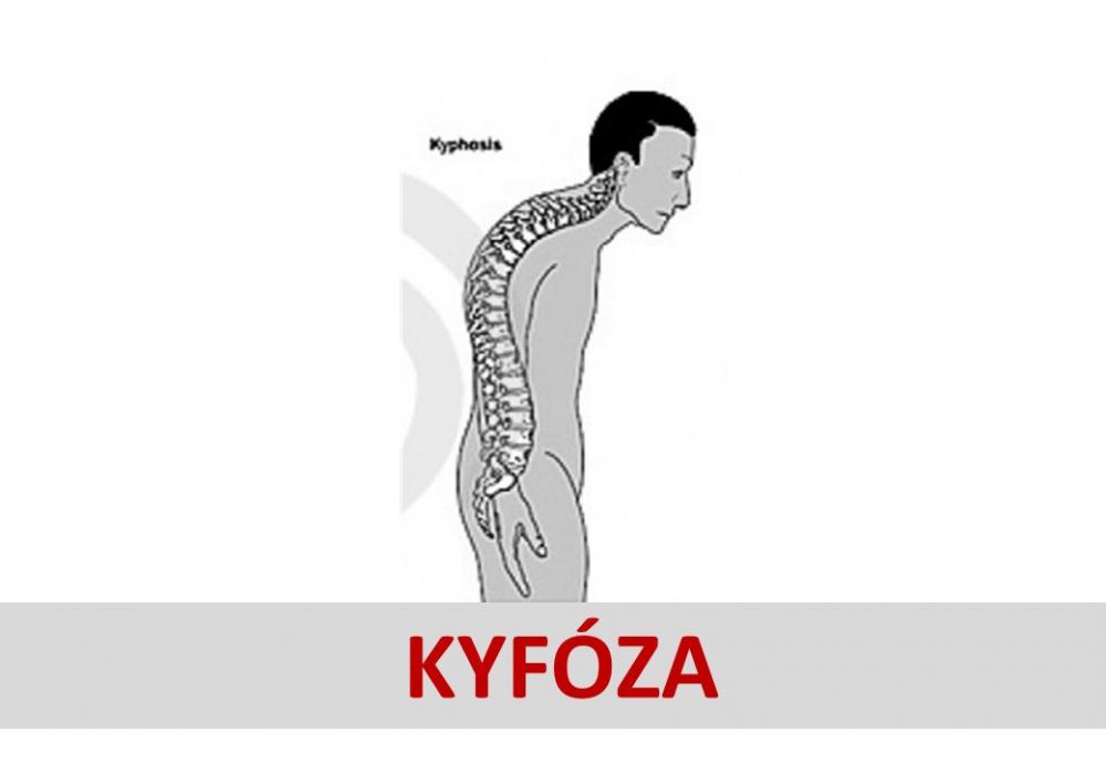 Kyfóza.JPG